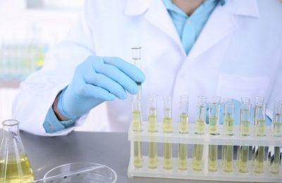 xét nghiệm có bạch cầu trong nước tiểu